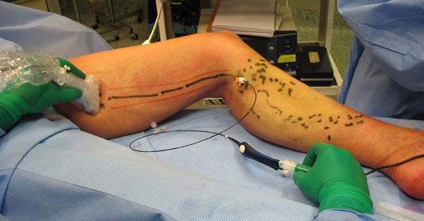 La varice variqueuse des membres inférieurs