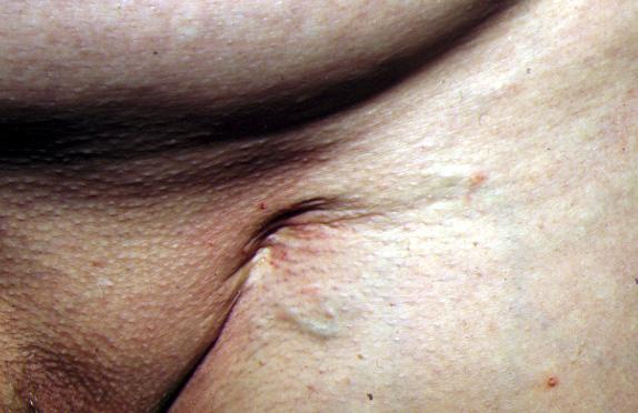 La thrombose le diagnostic le traitement