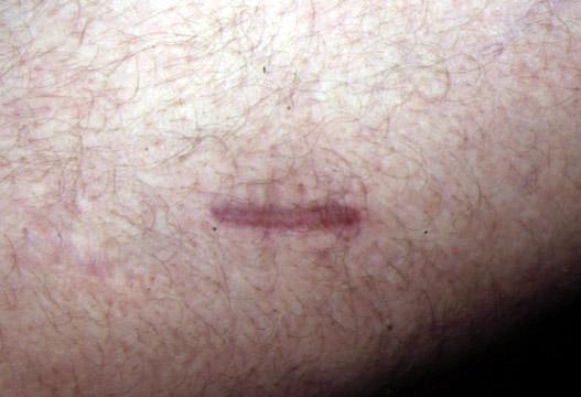La cicatrisation esthétique dans la chirurgie des varices
