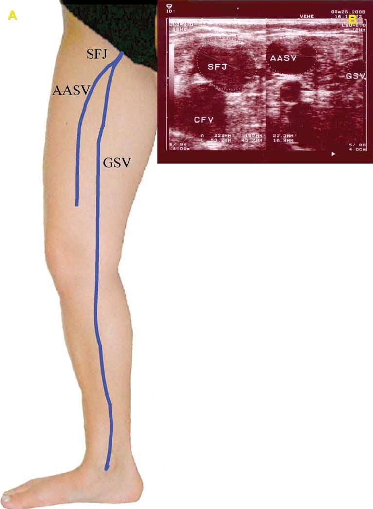 Duplex ultrasound investigation of the veins in chronic venous ...
