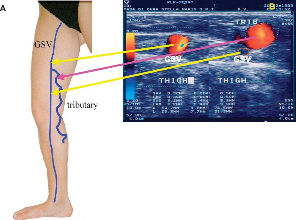 Duplex Ultrasound Investigation Of The Veins In Chronic Venous
