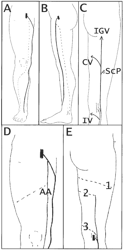 Nomenclature of the veins of the lower limbs : An international ...