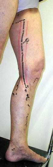 effet secondaire sclerose varices